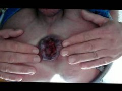 Fingering Asshole vidz extrem Rosebud  super Gape Anal Dilation